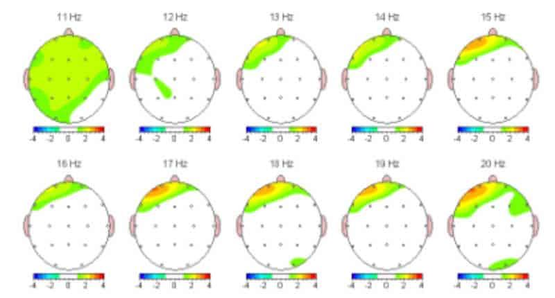 Image of an ADHD Brain Scan after neurofeedback
